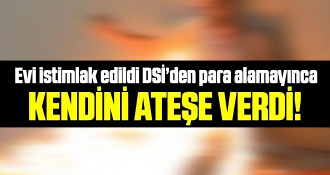 Samsun'da DSİ'den Para Alamadı Kendini Ateşe Verdi!