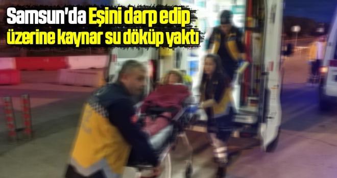 Samsun'da Eşini darp edip üzerine kaynar su döküp yaktı