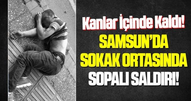 Samsun'da sokak ortasında sopalı saldırıda kanlar içinde kalıp bayıldı