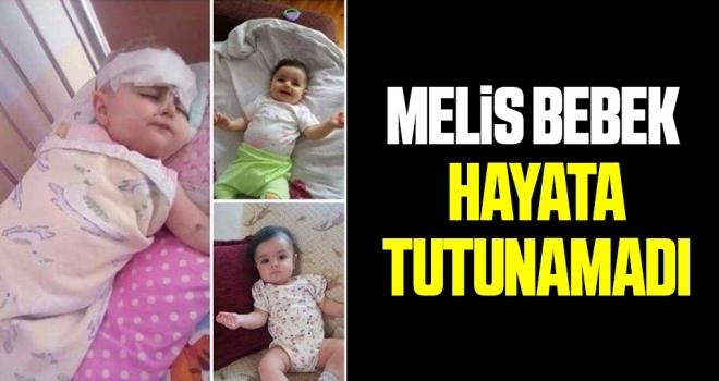 Melis Bebek Hayata Tutunamadı